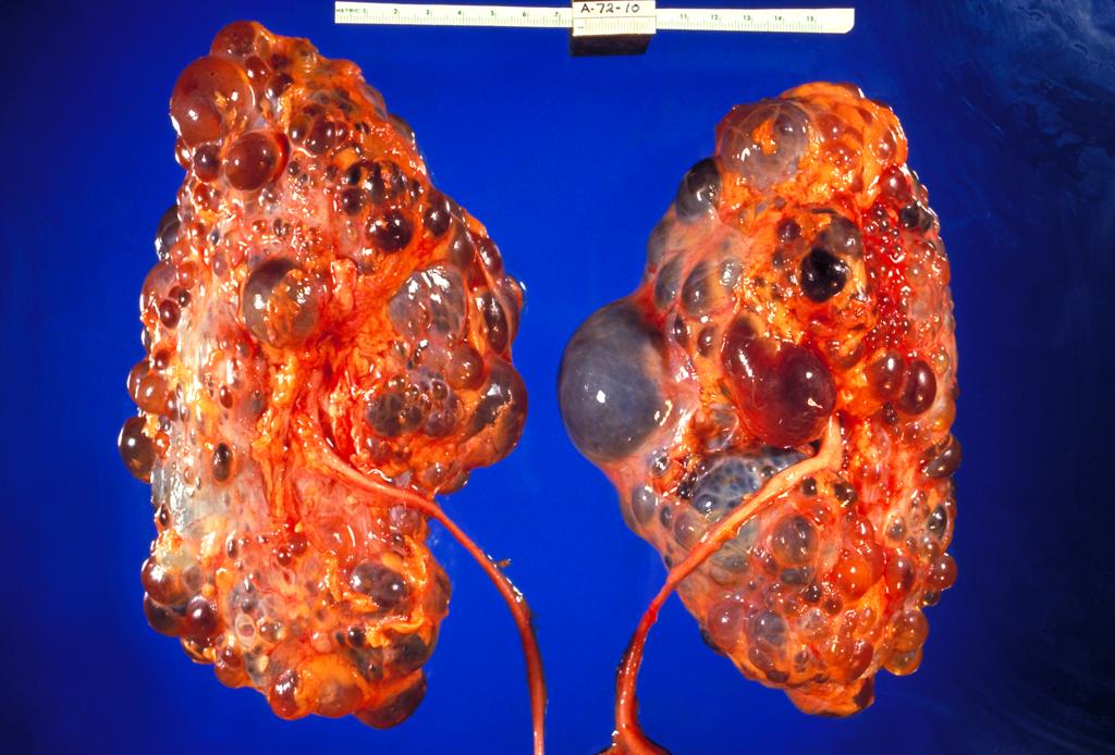 16.6.3 Polycystic Kidney Disease