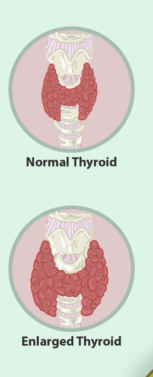 Enlarged thyroid