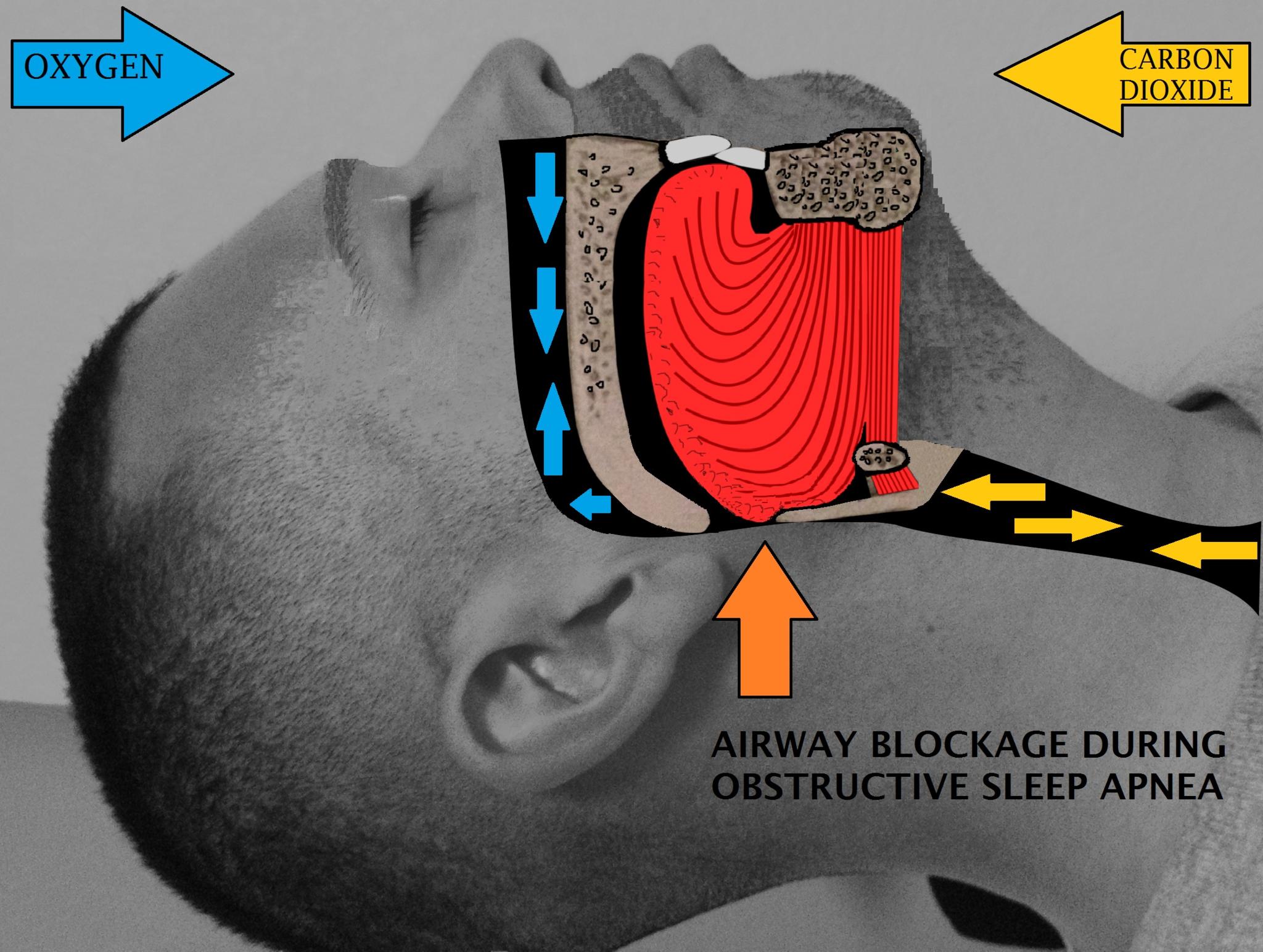 15.5.6 Sleep Apnea Airway Blockage