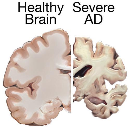 Healthy and Alzheimer's Brain Comparison