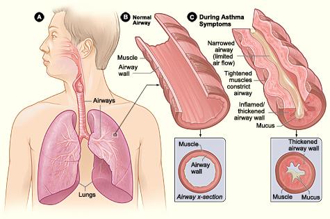 13.5.2 Asthma