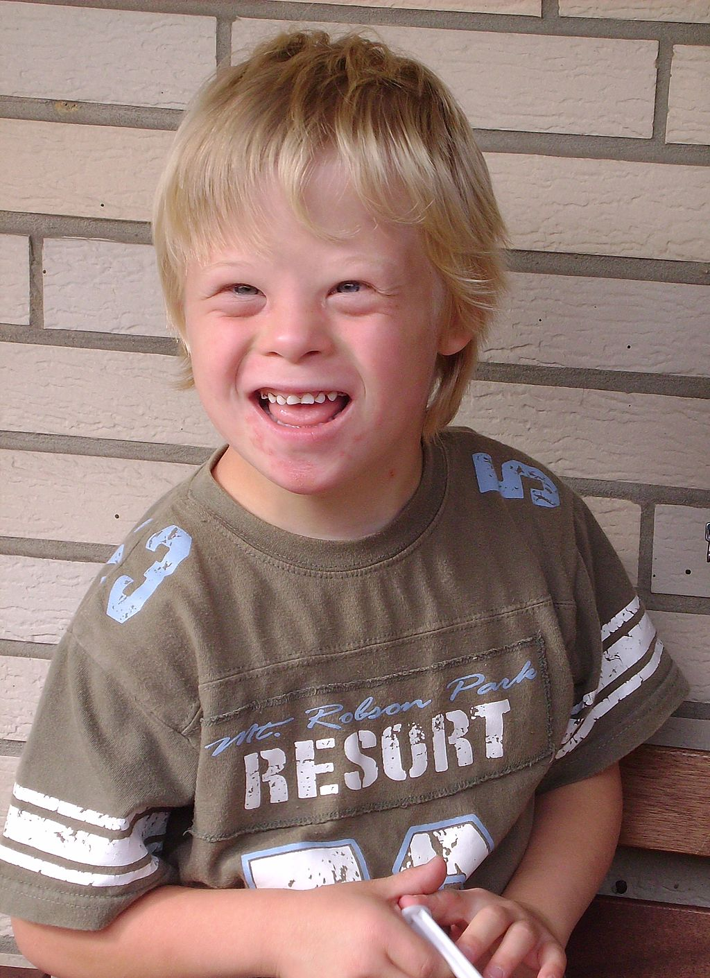 Image shows an image of a young boy with Down Syndrome.