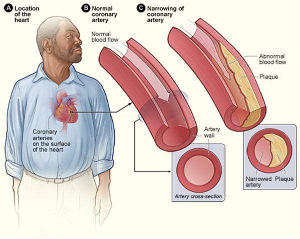 14.6.3 Coronary Heart Disease