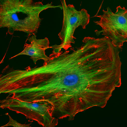 The cytoskeleton gives the cell an internal structure, like the frame of a house. In this photograph, filaments and tubules of the cytoskeleton have been stained green and red, respectively, so that they can be seen clearly. The blue dots are cell nuclei.