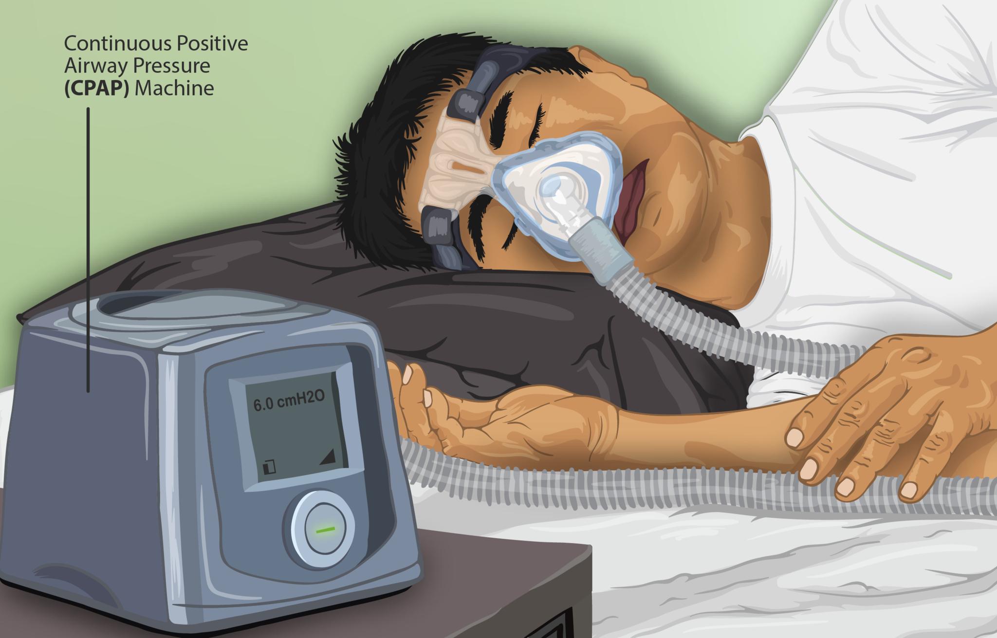 15.5.7 CPAP to Treat Sleep Apnea