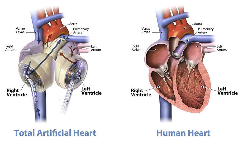 14.3.10 Total Artificial Heart