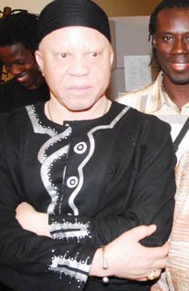 Example of a human displaying albinism