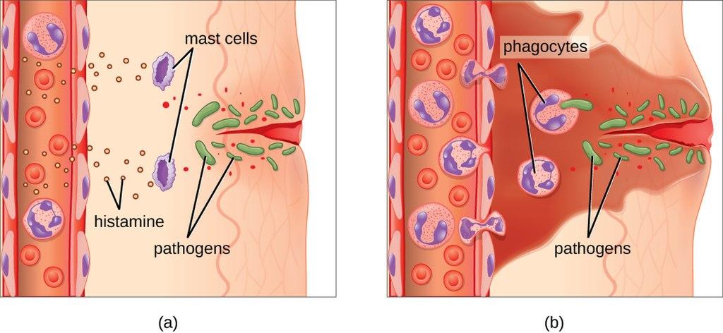 17.4.4 Inflammatory Response