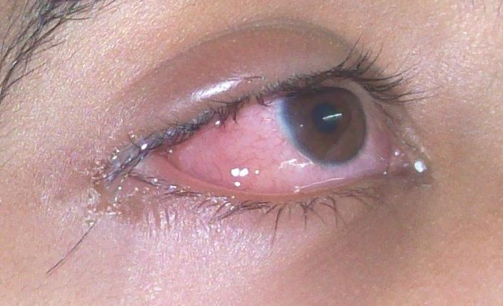 17.6.1 Allergies