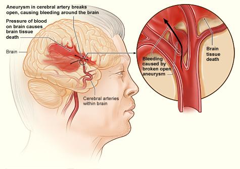 14.6.7 Hemorrhagic Stroke