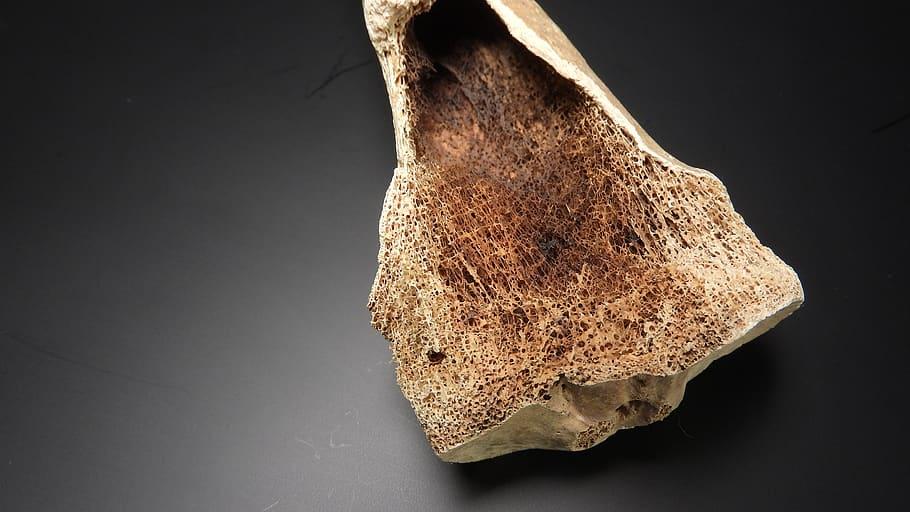11.4.4 Spongy Bone